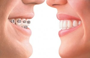 orthodonti-kawatgigi
