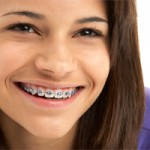 braces-orthodontics