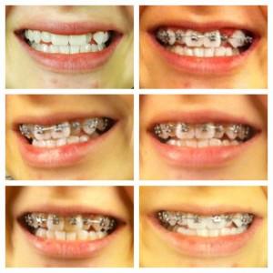 braces-tips